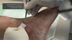 Aplikace bionáplasti Amnioderm na nosiči nitrocelulóza