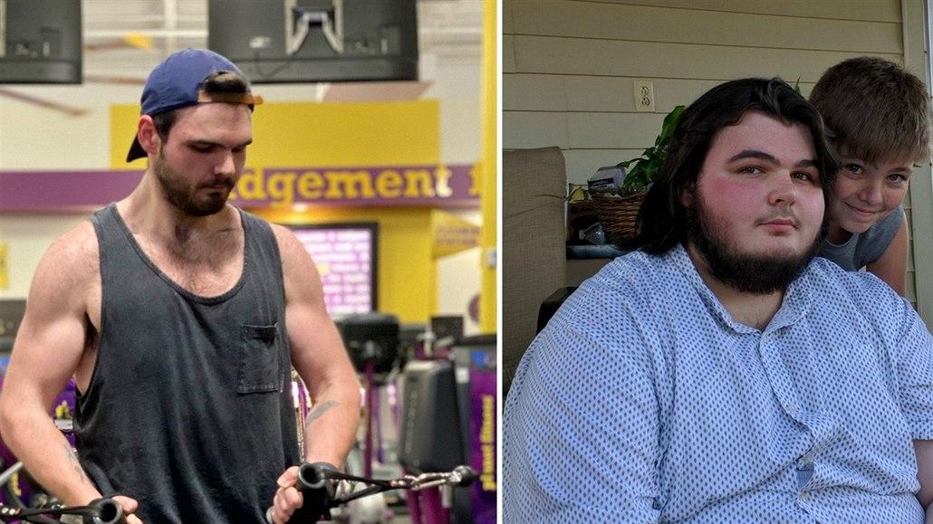 Muž držel bramborovou dietu, zhubl devadesát kilogramů