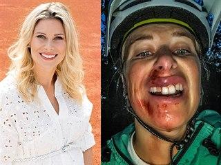 Andrea Sestini Hlaváčková měla nehodu na kole