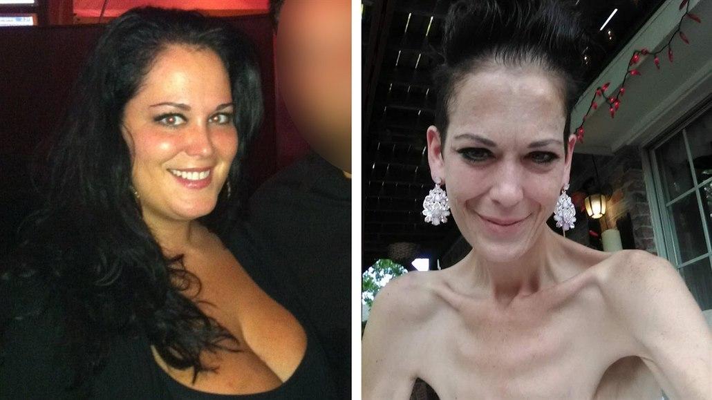 Z morbidně obézní ženy anorektičkou. Na vině byl zpackaný bypass žaludku