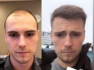 Vítěz StarDance Dominik Vodička se na Instagramu svěřil s tím, že si v...