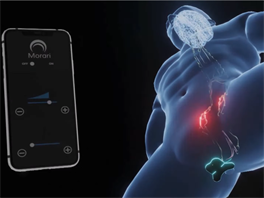 Morari transdermal neuromodulation patch