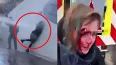 Při protestech sestřelili Češku vodním dělem
