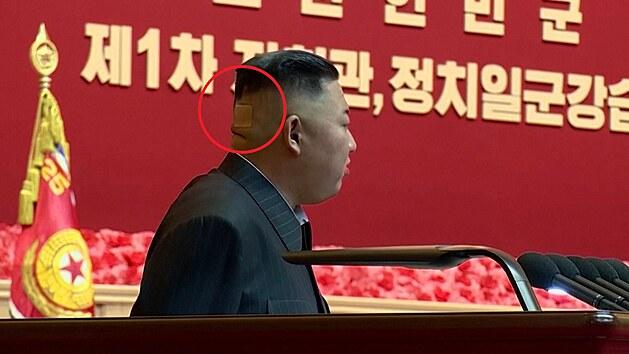 Záhadná náplast na zátylku hlavy vůdce KLDR probudila spekulace