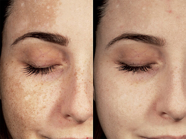 Před a Po - Výsledky po používání přípravků Eucerin Anti-Pigment po 12 týdnech
