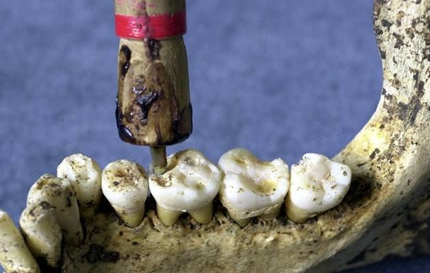 Zubaři ordinovali už v pravěku