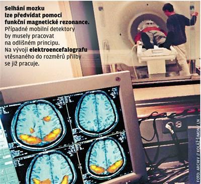 Mozek hlásí: Beru si volno
