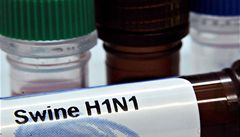 Spojené státy přiznaly počet obětí prasečí chřipky. Je jich 10 tisíc