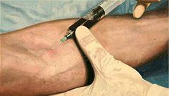 Texas 'mění' smrtící injekce. Použije látku k utrácení zvířat