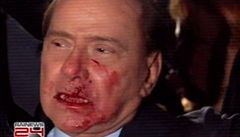 Berlusconi má bolesti a zůstává v nemocnici, ruší veřejné akce
