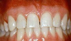 Češi se zlepšili v péči o chrup, zubní pomůcky ale používají málo