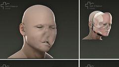 Ve Španělsku provedli první úplnou transplantaci obličeje