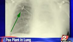 Američanovi v plíci vyklíčil hrášek. Myslel si, že má rakovinu