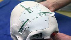 Čeští neurochirurgové poprvé použili implantát, který se sám změní v kost