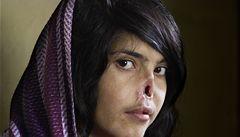 Podívejte se: tálibové jí uřízli nos a uši, její portrét vyhrál World Press Photo