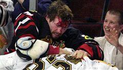 Otřesy mozku děsí NHL. 'Boxerská demence' straší už i hokejisty