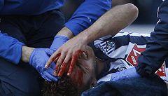 Krvavá anglická fotbalová sobota ve znamení ošklivých zranění