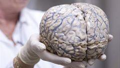 Zážitky z klinické smrti? Může za ně elektrická aktivita v mozku