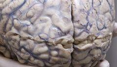 Vědci sestavili nejpodrobnější model mozku