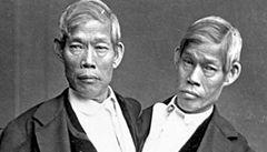 Slavná siamská dvojčata měla dohromady 21 dětí