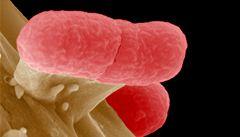 Nebezpečnou bakterii E.coli našli už i v potoce
