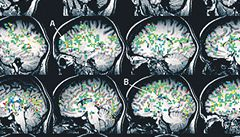 Experiment: Co se děje v mozku během orgasmu?