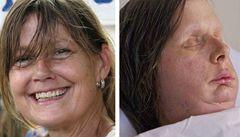 Žena po transplantaci ukázala novou tvář