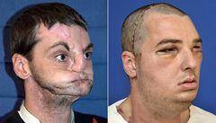 Úspěch lékařů: muž získal novou tvář, čelisti i jazyk
