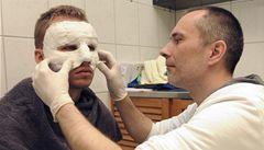 Leverkusen: Za Kadlecovo zranění viníci draze zaplatí