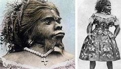Život prožila u cirkusu jako kuriozita. Opičí ženu pohřbili 150 let po smrti