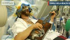 Operovali mu mozek a Američan si přitom hrál na kytaru