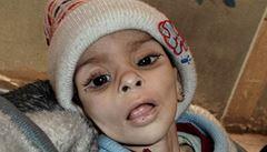 'Nezbyli tu žádní lidé. Jen kostlivci se žlutou kůží,' zní z Damašku