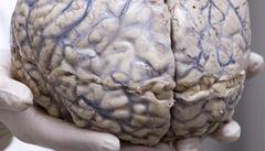Vědci ve Francii mají málo mozků. Darujte ten svůj, vybízejí