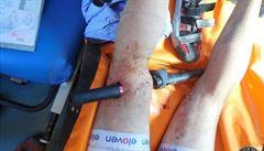 Cyklista si při závodu probodl stehno řidítky vlastního kola
