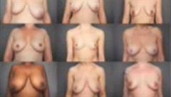 Toto jsou skutečná prsa žen, upozorňuje fotografka na mediální přeludy