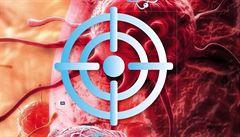 Revoluce v léčbě. Protony: naděje, nebo jen pokus?