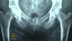 V Irsku při porodech mrzačili ženy, aby více rodily. Nyní přicházejí svědectví