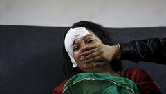 Místo reportáže otevřená lebka. Reportér CNN v Nepálu pomáhal lékařům
