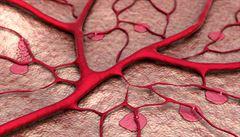 Pacientů s nemocemi cév je u nás víc než dost, říká lékař