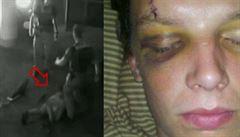 Už podruhé bylo zastaveno stíhání policisty, který srazil motorkáře