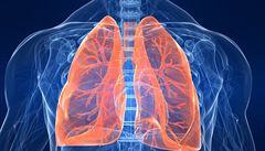 V Pekingu stoupl počet případů rakoviny plic, kvůli kouření a ovzduší