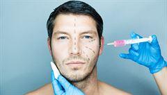 Češi propadli plastickým operacím. Muži tvoří čtvrtinu pacientů