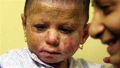 POHNUTÉ OSUDY: Natálce už chybí zdravá kůže. I šest let po útoku musí na sál