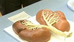 Transplantace plic v Motole. Díky nové technologii dostane orgán více pacientů