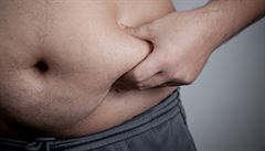Léčba obezity je obtížná, uspěje jen třetina pacientů