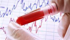 Finští vědci vyvíjejí metodu rozpoznání rakoviny ze vzorku krve