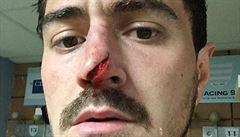 Hrozivé zranění. Ragbistovi roztrhla kopačka soupeře špičku nosu