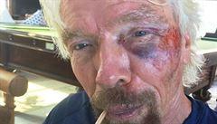 Šéf firmy Virgin Branson měl těžkou cyklonehodu, prý se bál smrti