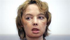 Zemřela žena, která jako první podstoupila transplantaci tváře
