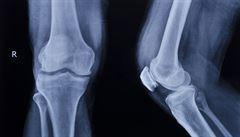 Řídnutím kostí trpí zhruba milion Čechů, ale léčí se jich zlomek